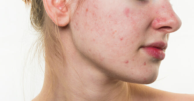 With Argan Oil, You'Ll Never Have To Worry About Acne Scars Anymore