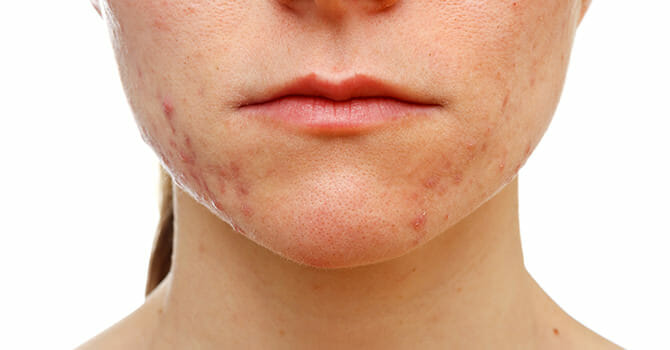 In Order To Treat Acne, You Must Follow A Certain Lifestyle Change