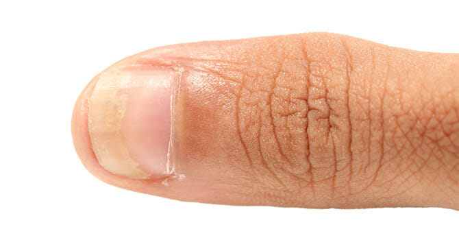 Nail Fungus Destroys The Nail And Must Be Eliminated