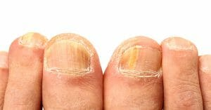 Nail Fungus Will Destroy The Nails And Must Be Exterminated