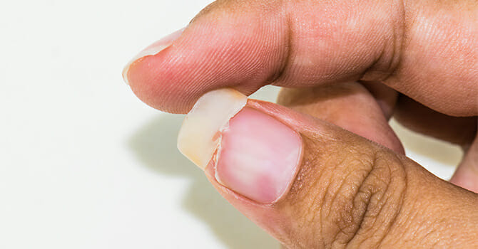 There Are Many Nail Problems And Diseases