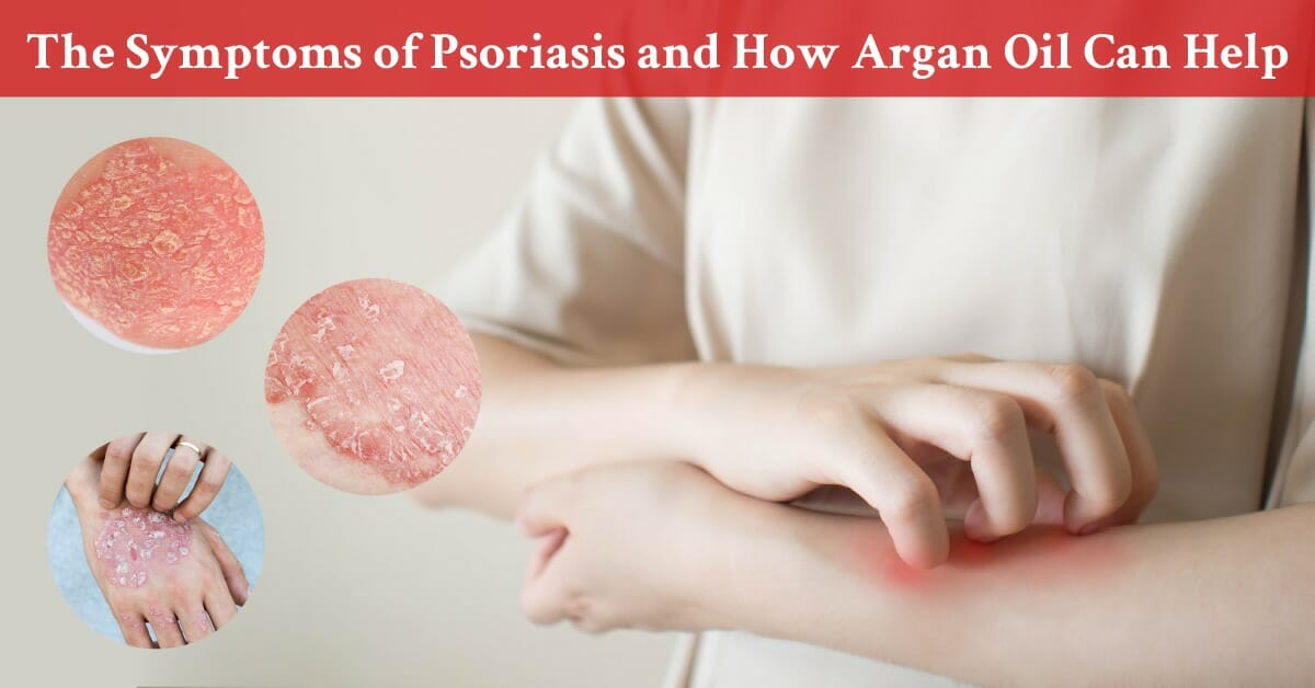 different symptoms of psoriasus