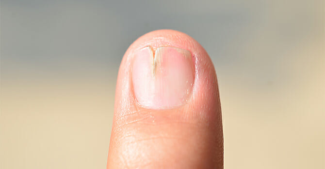 Keep Your Nails Looking Normal