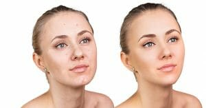 Acne Can Be Easily Treated Using Argan Oil