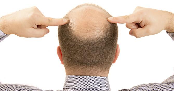 Multiple Factors Causes Baldness