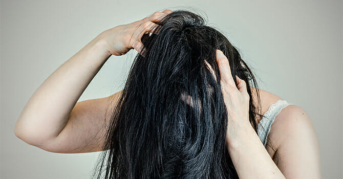 Itchy Scalp Means Dandruff