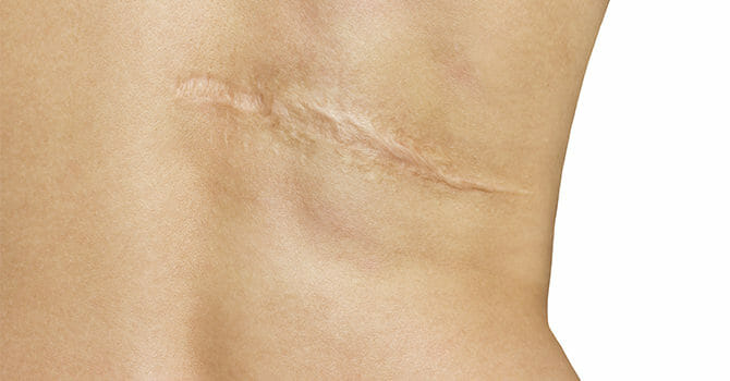 Scars Can Be Eliminated, Contrary To Popular Belief That They're There To Stay