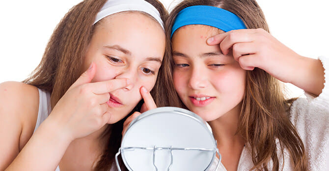 Acne Is Very Common Among Teenagers Because Of Puberty