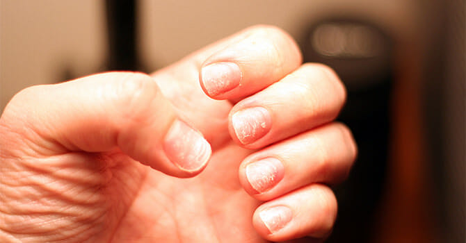 Brittle Nails Are Easily Damaged And Clipped