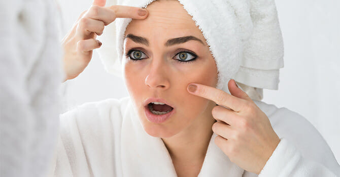 The Most Common Cause Of Adult Acne Is Stress