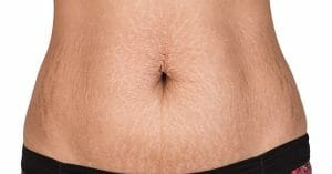 Put An End to Stretch Marks