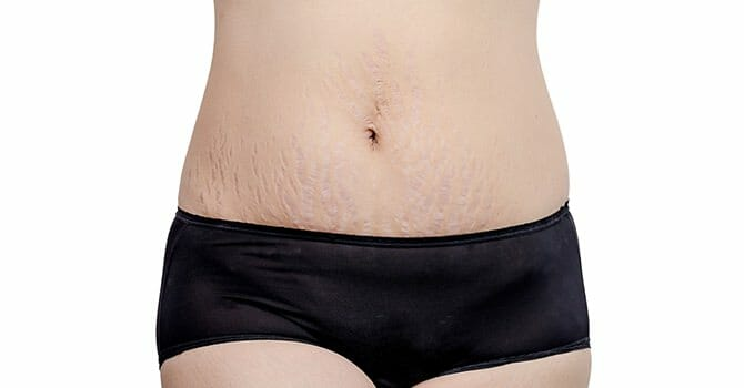 You Can Do Something To Eliminate Stretch Marks