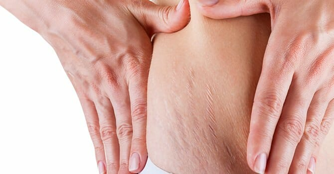 Stretch Marks Is Another Common Problem Today