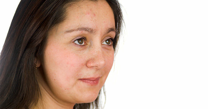 Acne Is One Of The Most Common Skin Problem In The World