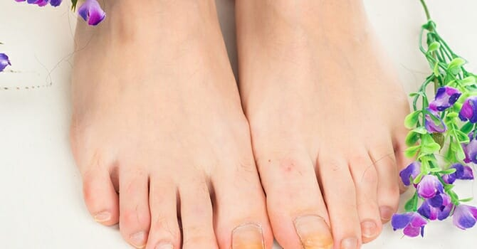 Don't Hide Your Toes, Show Them Off By Caring For Them