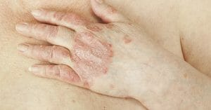 Psoriasis Can Ruin Your Skin If You Don'T Treat It Earlier