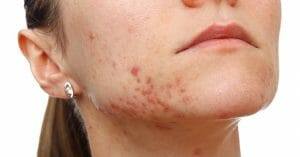 Acne Scars Can Leave Your Face Ruined