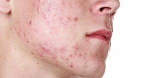 Acne Scars Can Be Very Annoying