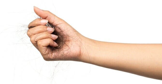 Hair Loss Is Most Commonly The Result Of Stress