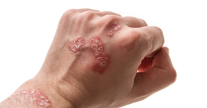 Psoriasis Is A Common Skin Problem That Can Ruin Our Pretty Skin