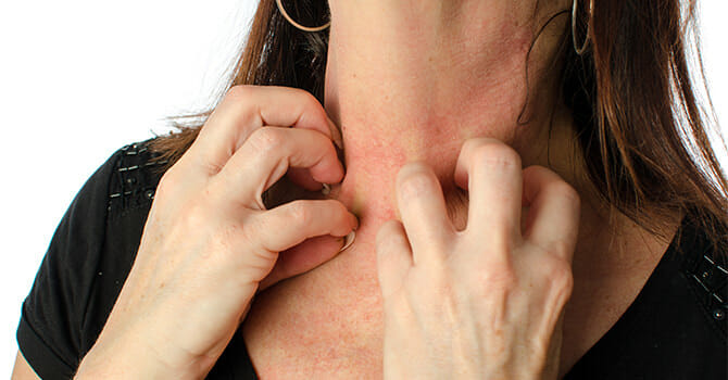 Failing To Treat Eczema Earlier Can Pose A Lot Of Damage To Your Skin