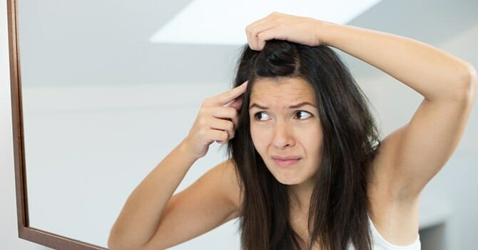 Dandruff Is An Annoying And Embarrassing Problem