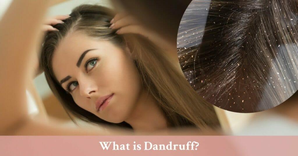 close up of dandruff