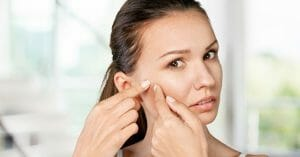 Acne Can Be Treated Using Natural Product