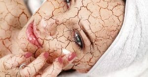 If You Are Dehydrated, You'll Have Dry Skin