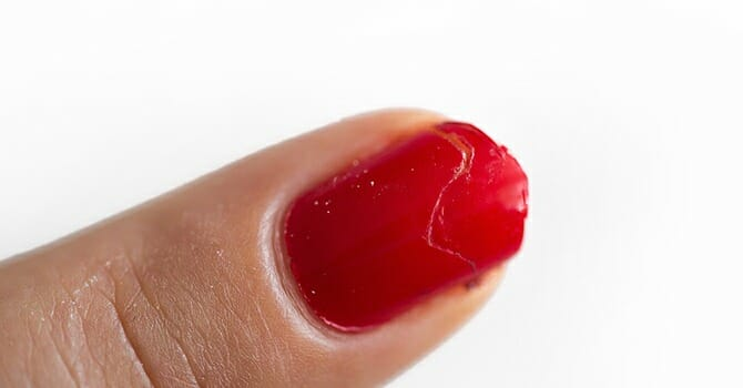 Hangnails Makes Your Nails Ugly