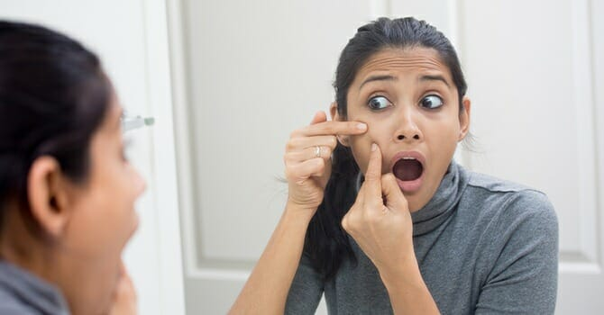 Acne Scars, Unlike Many Believes, Can Be Easily Eliminate