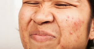 Acne Can Be Easily Eliminated Using Natural Products