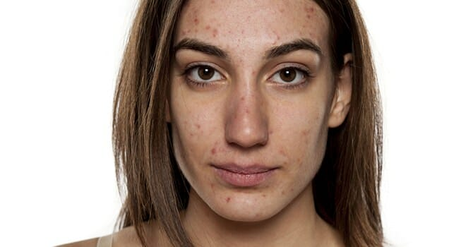 Acne Scars Is A Stigma You Don'T Want To Keep