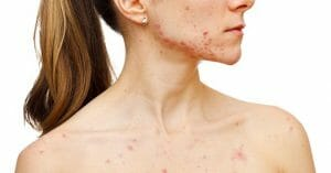 Acne Can Affect Anyone From All Age Bracket