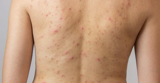 Acne Can Also Occur On Your Back