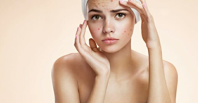 If You Experience Acne Breakout, It Means That You Are Living An Unhealthy Lifestyle