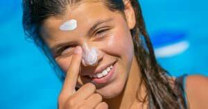 Sunburn Are Popular During Summertime