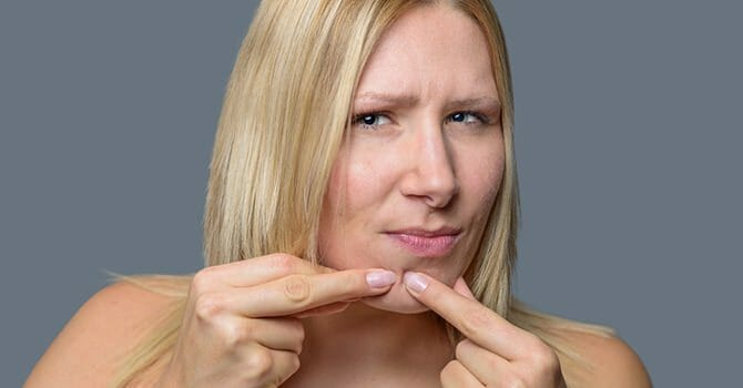 Preventing Acne Is Important If You Want To Keep Your Face Silky Smooth
