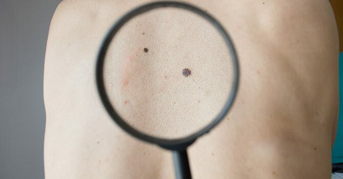 Skin Cancer Can Be Fatal But It'S Easily Curable And Preventable
