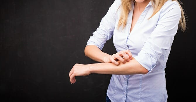 Psoriasis Can Occur No Matter The Time Of The Year