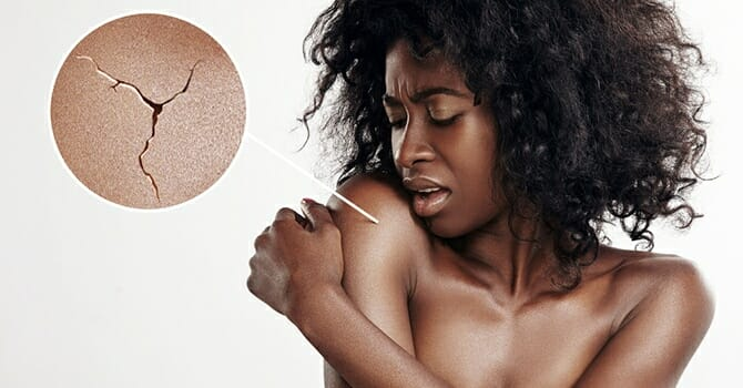 Unhealthy Skin Means Unhealthy Lifestyle