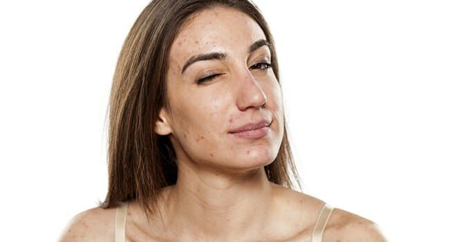 Acne Has Never Been A Great Thing On Your Face