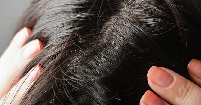 There Are Several Ways To Treat Dandruff