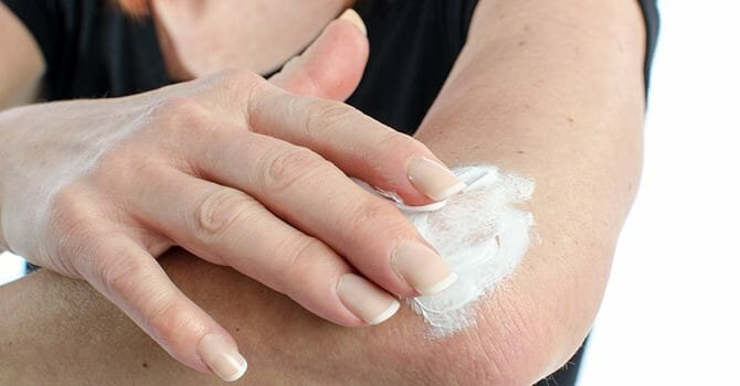 Eczema Can Be Easily Treated With Home Remedies