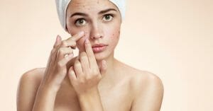Acne Is Largely Affected By Hormone Activity