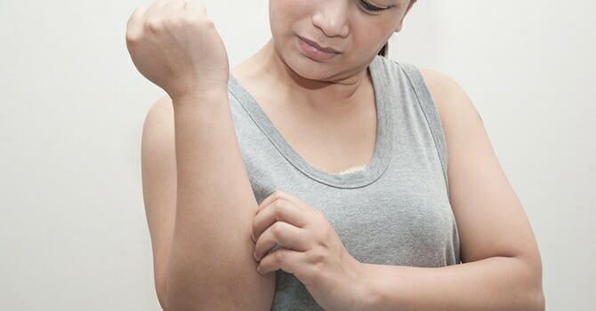 Psoriasis Ruins Your Skin