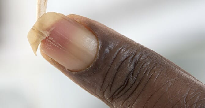 Improper Nail Care Leads To Unhealthy Nails