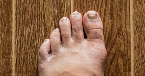 Nail Fungal Infection Can Be Dangerous