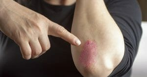Many Treatments Are Available For Psoriasis