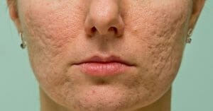 Acne Scars Look Unpleasant